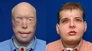 안면이식 수술 전(왼쪽)과 수술 후 3개월이 지난 11월 11일의 모습(오른쪽). - NYU 랜건 메디컬센터 제공